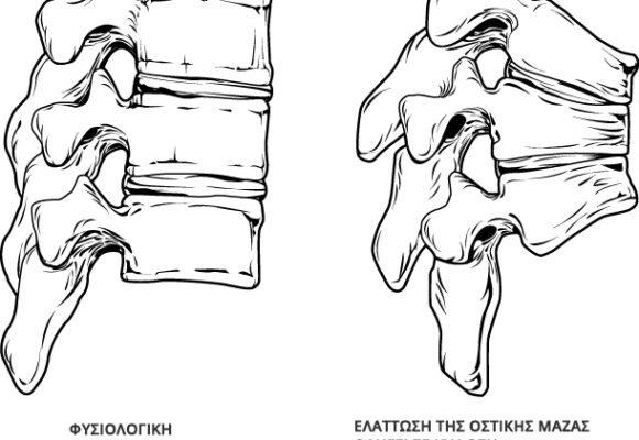 Οστεοπόρωση: Συμπτώματα και Αντιμετώπιση