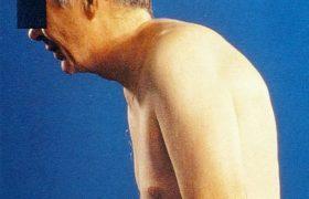 Αγκυλοποιητική Σπονδυλαρθρίτιδα και Αντιφλεγμονώδη Φάρμακα