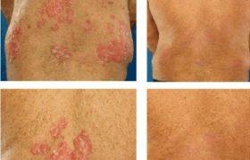 Ψωριασική Αρθρίτιδα: Συμπτώματα και Θεραπεία